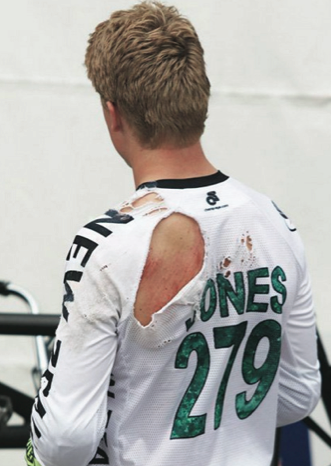 Mishap costs Jones spot in BMX World Cup final